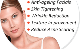 A woman shown with the benefits of Venus Viva for the face and neck such as: sin tightening, anti-ageing facials, wrinkle reduction, etc.