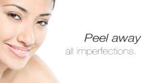 """Peel away all imperfections"" shown with a woman smiling."