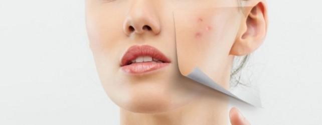 Best Acne Scar Treatment Methods